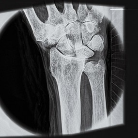 x-ray of a human wrist