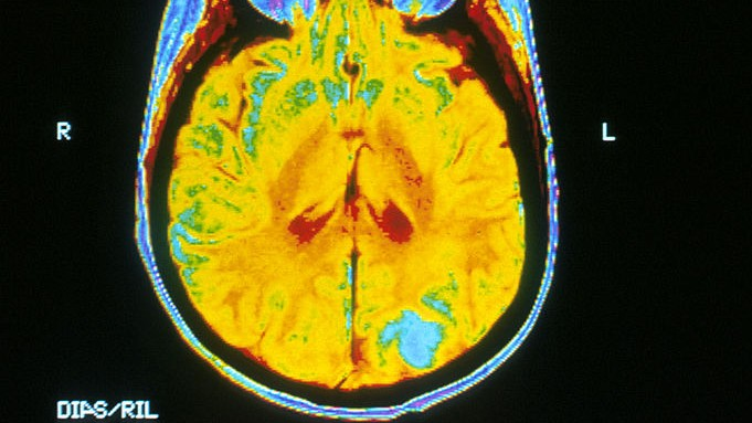 The woman whose brain staved off her family's Alzheimer's