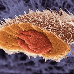 single cell of squamous cell