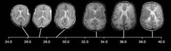 MRI scans of a developing fetus brain