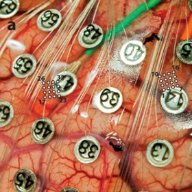 a sheet of electrodes on the surface of the brain