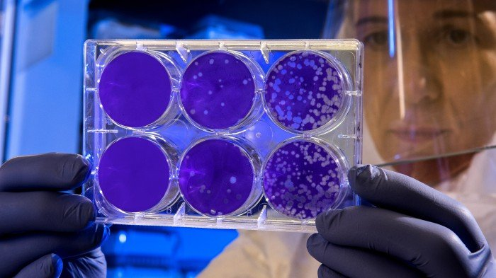 CDC researcher examined flu cultures