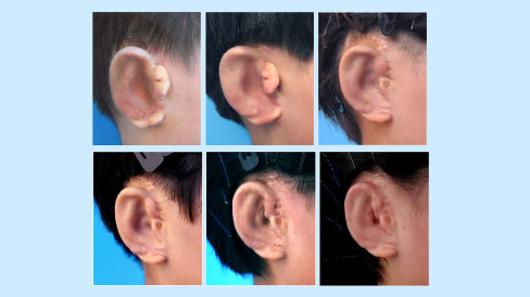 Progress of the newly made ears on a patient.