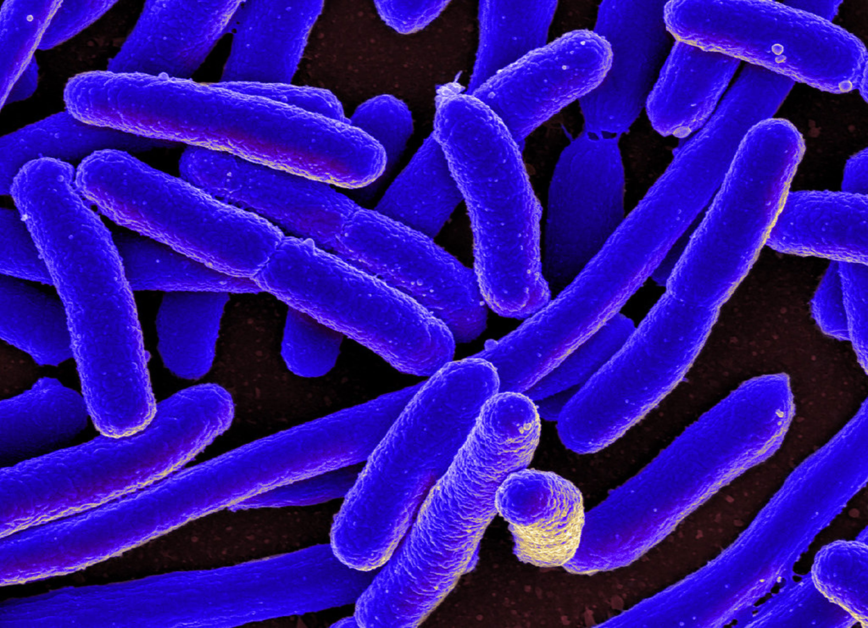 Researchers swap genome of gut germ E. Coli for an artificial one