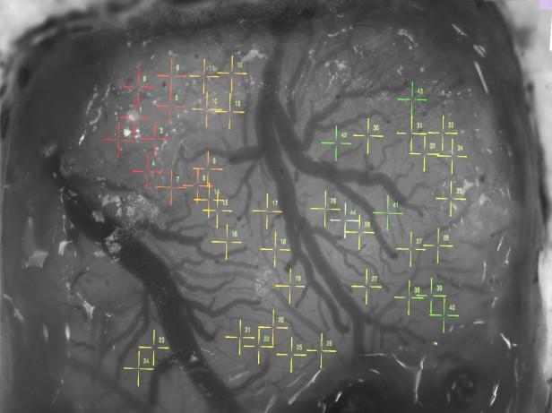 neural sewing machine targetting
