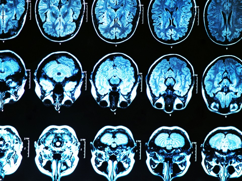 Is There A Test For Alzheimers >> Doctors Plan To Test A Gene Therapy That Could Prevent Alzheimer S