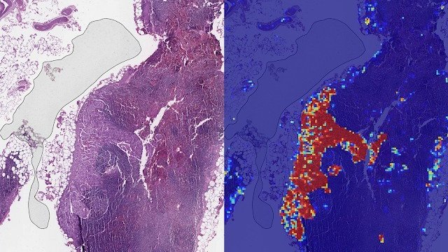 View of two clinical slides side-by-side with the AI tumor diagnosis on the right
