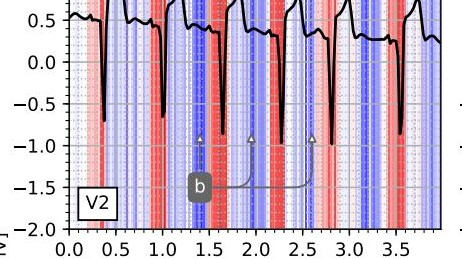 https://www.technologyreview.com/s/611541/algorithm-matches-human-cardiologists-in-detecting-heart-attacks/