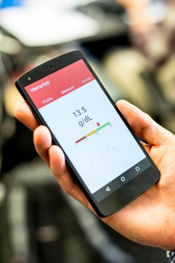 How to Make a Smartphone Detect Anemia - MIT Technology Review