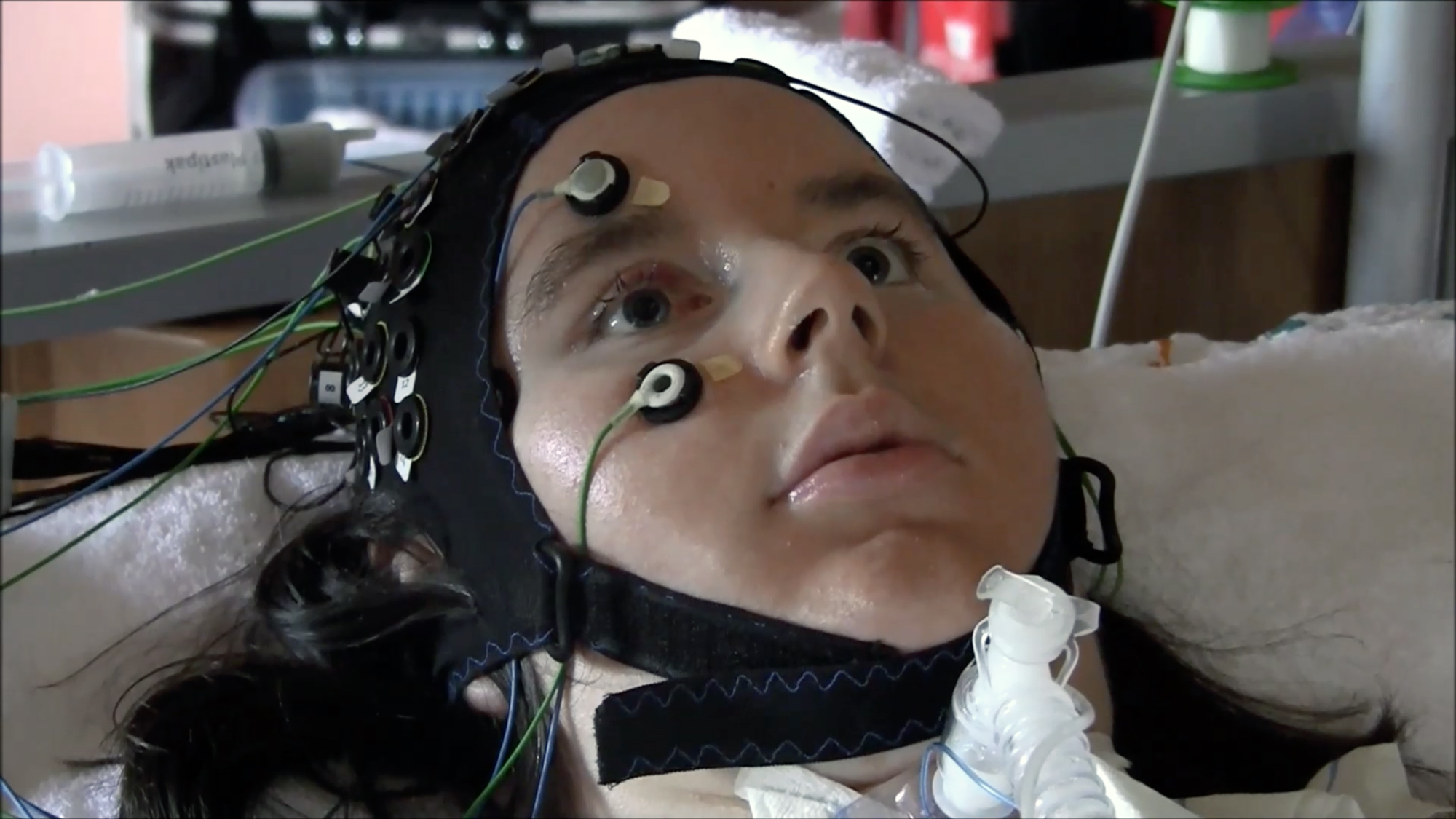 Reached Via a Mind-Reading Device, Deeply Paralyzed Patients Say They Want to Live