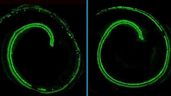 a mouse's cochlear hairs show up green