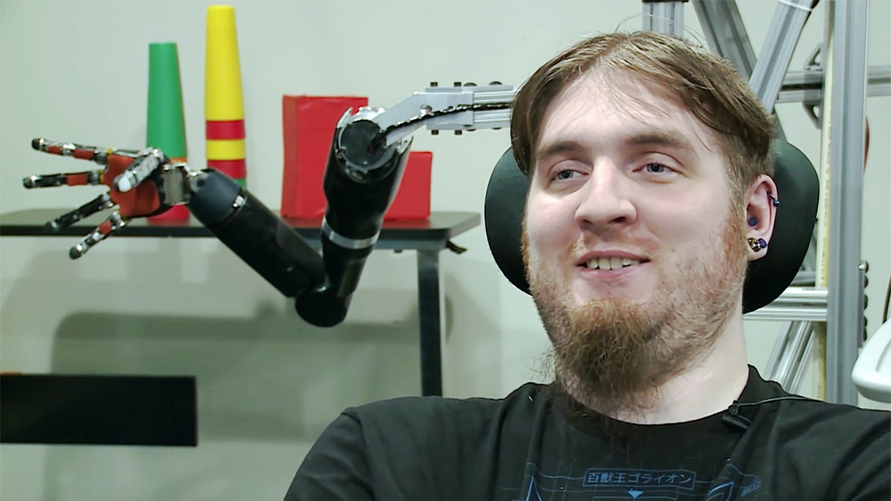 Portrait of Nathan Copeland, one of the first people to have a brain computer interface, with a robot arm behind his head