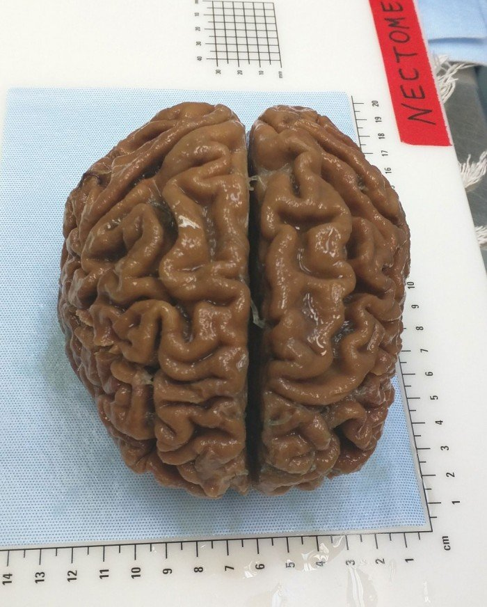 The brain of an elderly woman, preserved using fixative chemicals