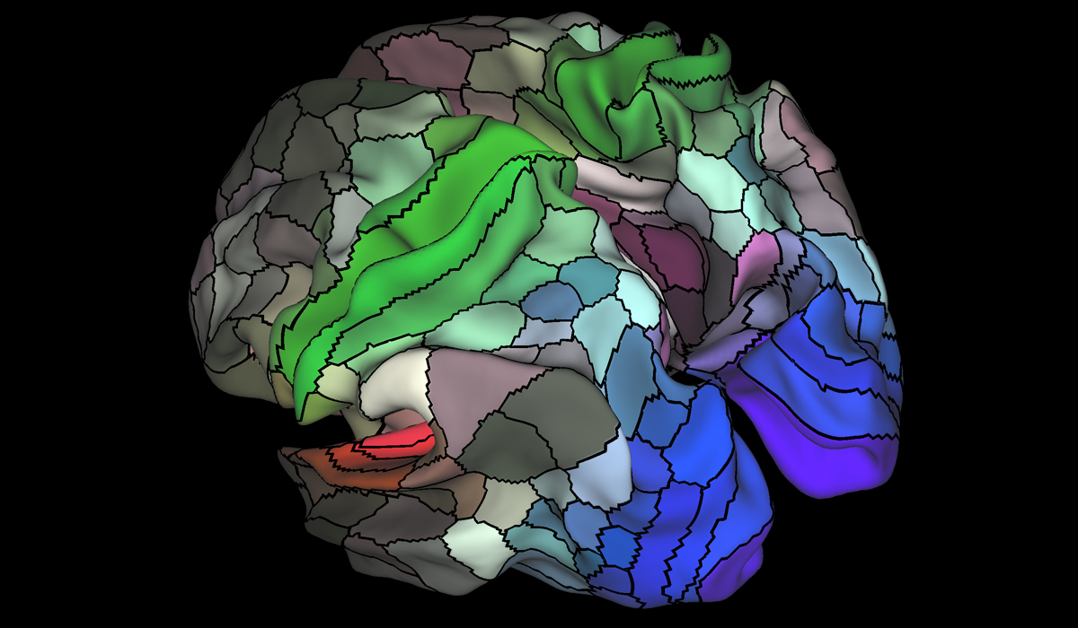 The Map of the Human Brain Is Finally Getting More Useful - MIT ...