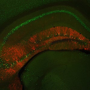 a mouse hippocampus (where memories are stored in mammals)