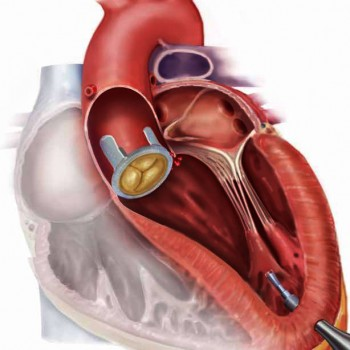 An artists rendering of the robotic catheter inserted into a heart