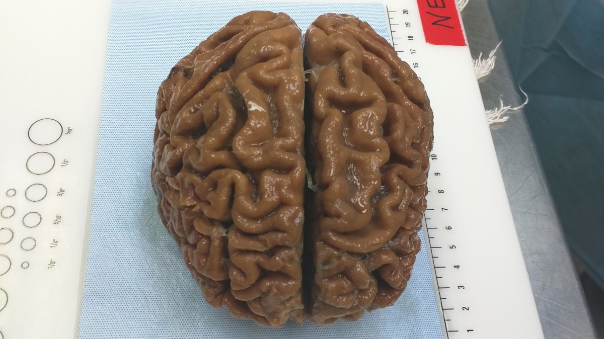 "A startup is pitching a mind-uploading service that is ""100 percent fatal"""