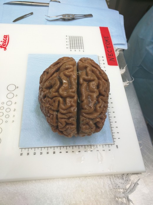 """A startup is pitching a mind-uploading service that is """"100 percent fatal"""""""