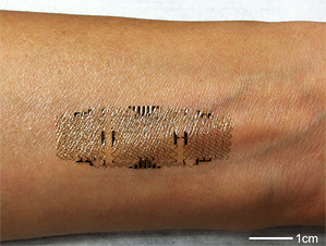 arm with band-aid shaped skin graph