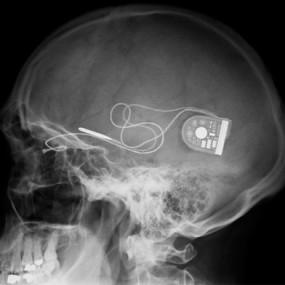 retinal implant