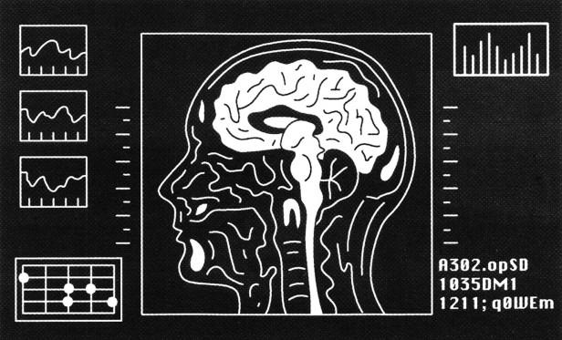 Illustration of brain scan