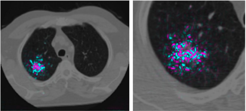 Google shows how AI might detect lung cancer faster and more reliably