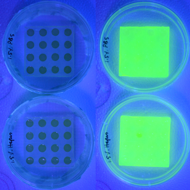 Smart Bandage Signals Infection by Turning Fluorescent