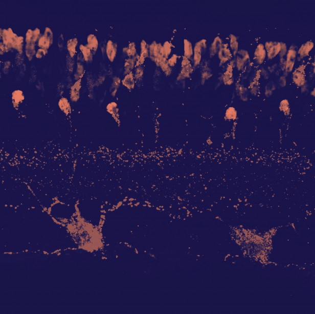 Micrograph of mouse retinal cells