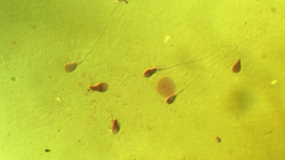 Microscopic photograph of human sperm