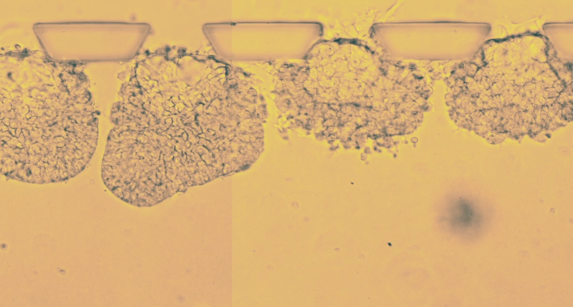 """Meet the artificial embryos being called """"uncanny"""" and """"spectacular"""""""