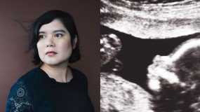 Kristin Myers and ultrasounds image