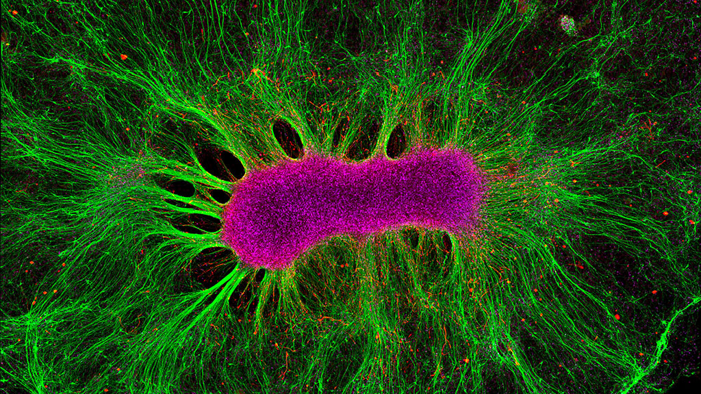 A human brain organoid can integrate with a rat brain.