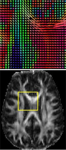 Astonishing Brain Images Reveal The Secret To Higher Iq Mit Technology Review Wiring Digital Resources Hutpapmognl