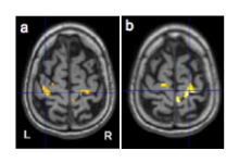 Repairing The Stroke Damaged Brain Mit Technology Review