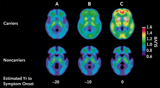 Rewriting Life. An Alzheimer's Warning 25 Years Before Symptoms Show