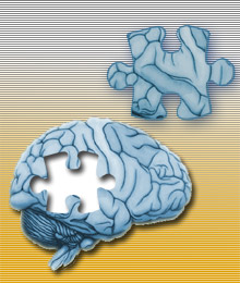 A New Treatment for Alzheimer's? - MIT Technology Review